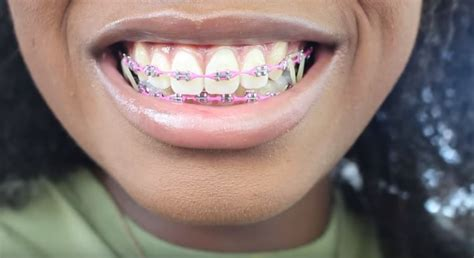 Braces UPDATE   New Wire, New Color, And MORE RUBBER BANDS