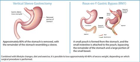 Bariatric Surgery & Medical Weight Management | UNC